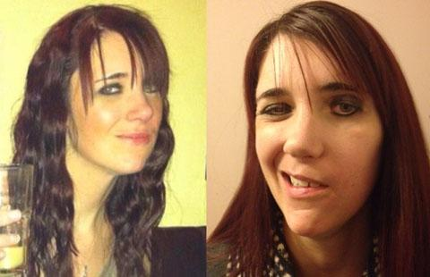 BEFORE AND AFTER: Vicki Hand developed facial palsy on the left side of her face, right, and, left, how she looks after surgery.