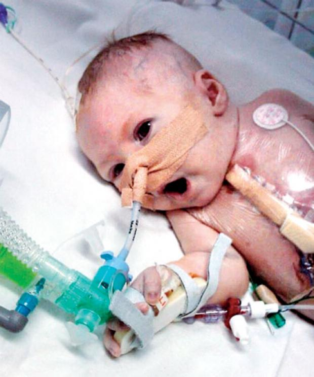 FIGHTING FOR LIFE: Baby Theo remained in hospital for more than two months after he was born with only half a heart. He died three months later.
