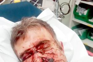Shocking picture shows horrific injuries to have-a-go hero's face